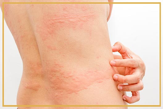 Urticaria Treatment in Gurgaon