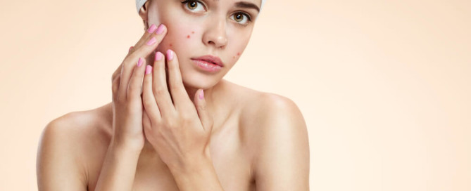 How to Treat Acne Fast