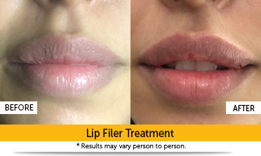 Fillers Treatment Gurgaon | Garekars M D  Dermatology Clinic