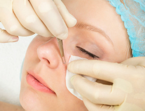 6 SIMPLE & EASY TIPS TO PREVENT BLACKHEADS