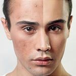 pigmentation-treatment