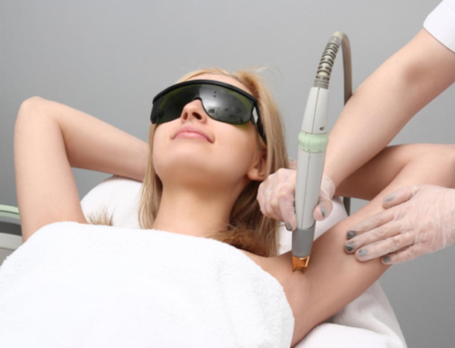 Whether Laser hair removal myths are true or not?
