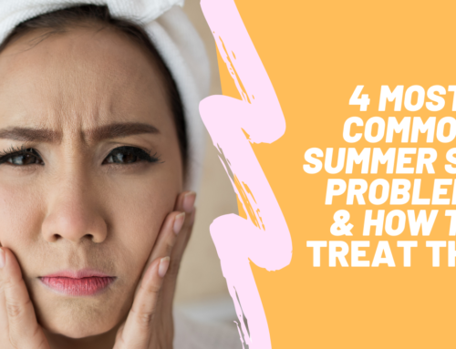 4 Common Summer Skin Problems and How to Treat Them!