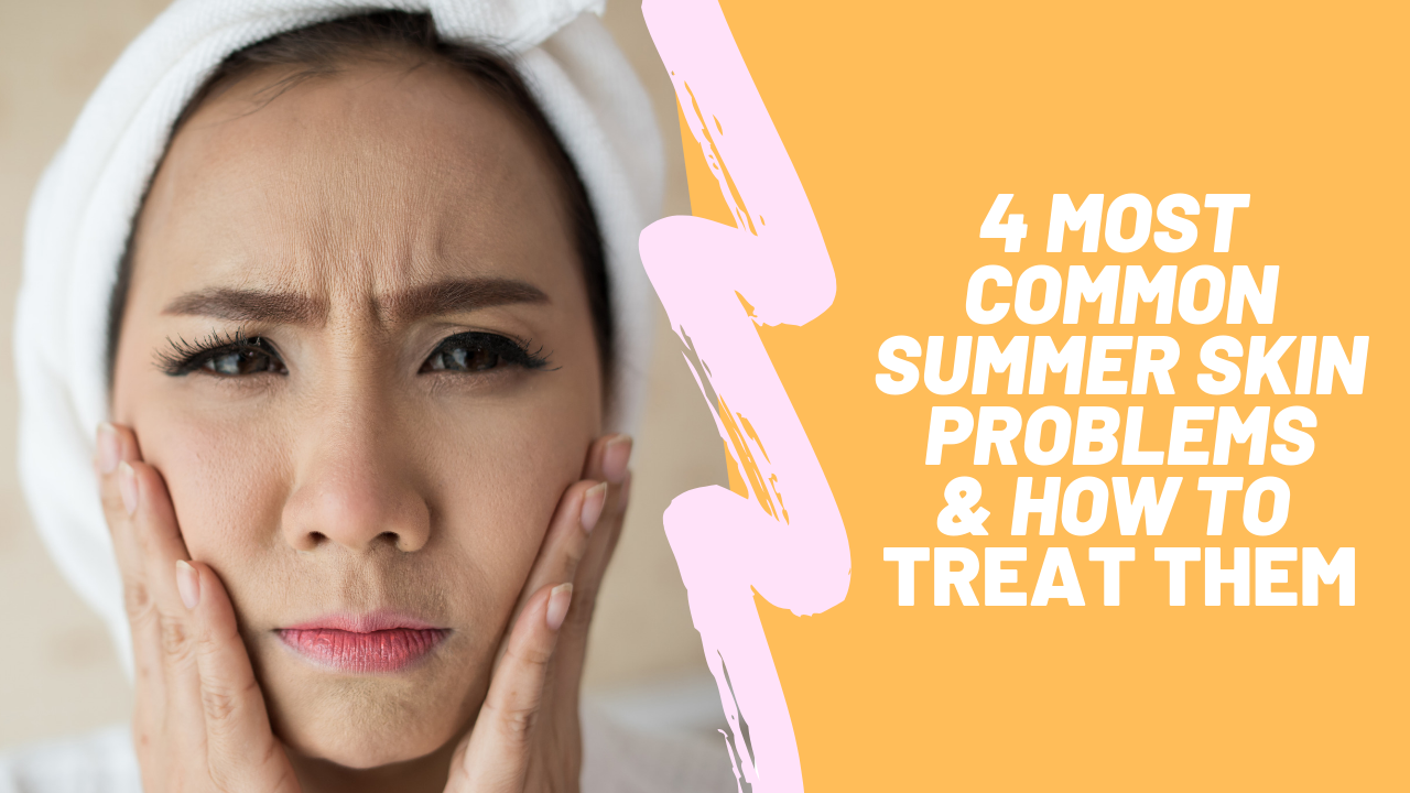 Top 4 Summer Skin Problems & How to Treat Them