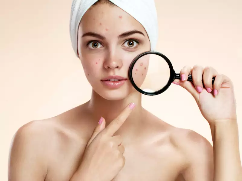 Wondering how to get rid of dark spots on the face? We've got you covered!.